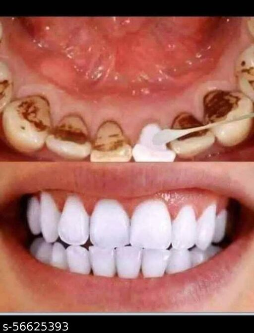 SURBHI NATURAL CHARCOAL POWEDER FOR HELP TO TEETH WHITENING